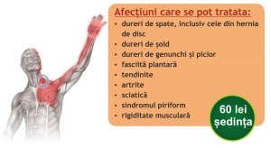 trigger points iasi